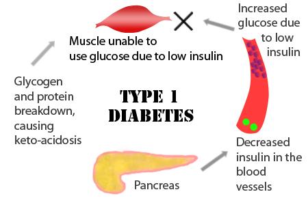 insulin dependent diabetes