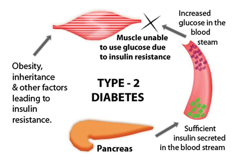 non insulin dependent diabetes